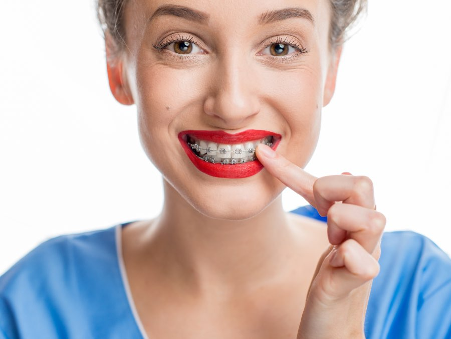 ortodonzia 3 | Studio dentistico a Fiorano al serio | Studio dentistico Mbm