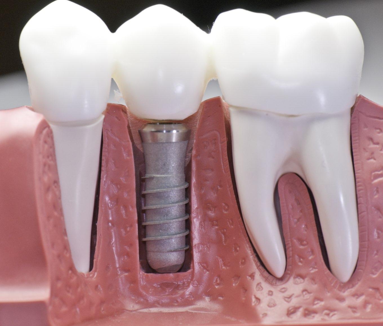 impianto dentale | Studio dentistico a Fiorano al serio | Studio dentistico Mbm