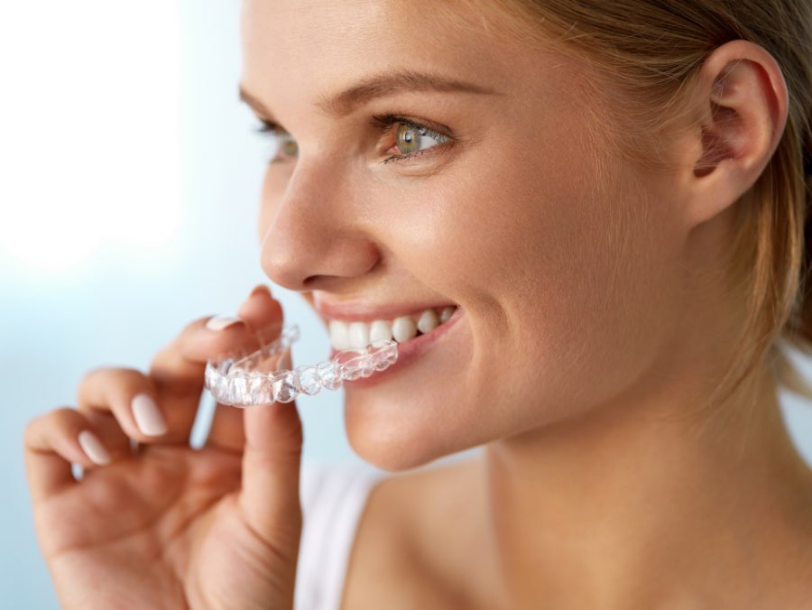 apparecchio invisibile 1 | Studio dentistico a Fiorano al serio | Studio dentistico Mbm