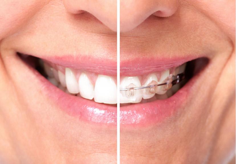 Ortodonzia 1 | Studio dentistico a Fiorano al serio | Studio dentistico Mbm